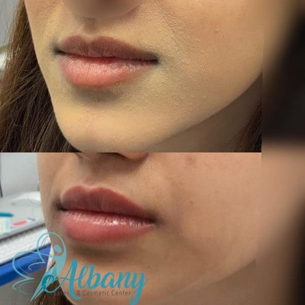 Lip fillers Cannula