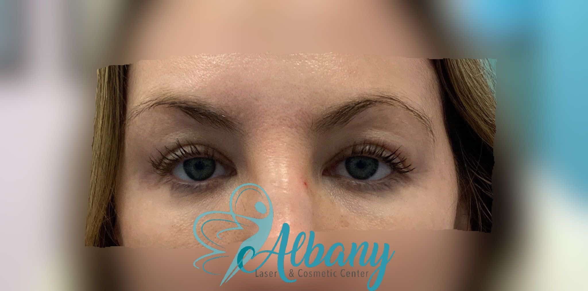 after eye brow lift