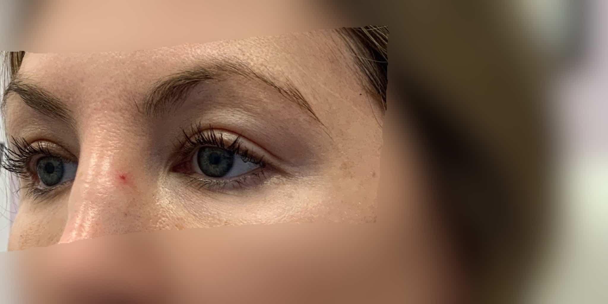 EyeBrow lift edmonton