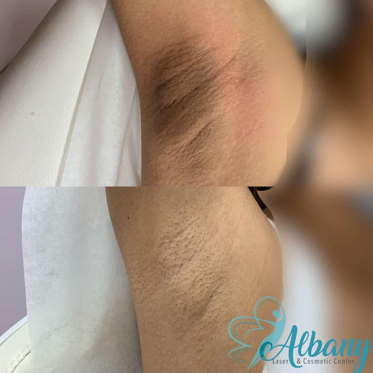 Underarm whitening
